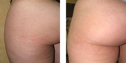 Stretch Marks on Butt Before and After Laser Treatment