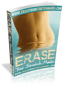 Erase Your Stretch Marks Guide